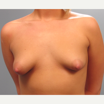 18-24 year old woman treated with Breast Implants before 3293852