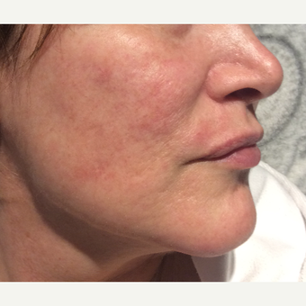 45-54 year old woman treated with Acne Scars Treatment after 3753351