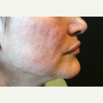 45-54 year old woman treated with Acne Scars Treatment before 3753351