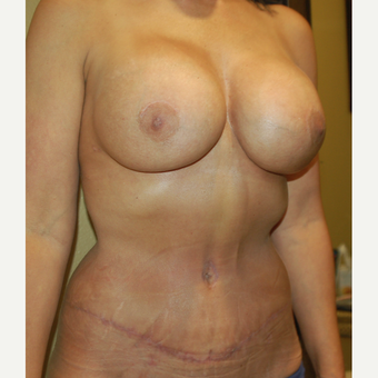 55-64 year old woman treated with Mommy Makeover after 3411416