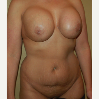 55-64 year old woman treated with Mommy Makeover before 3411416