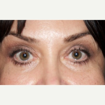 45-54 year old woman treated with Eyelid Surgery after 1817923