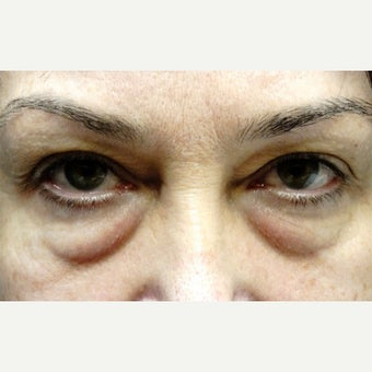 45-54 year old woman treated with Eyelid Surgery before 1817923