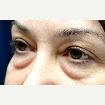 45-54 year old woman treated with Eyelid Surgery 1817923