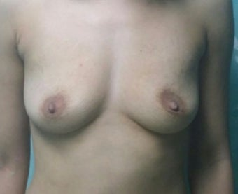 25-34 year old woman treated with Breast Augmentation before 3492288