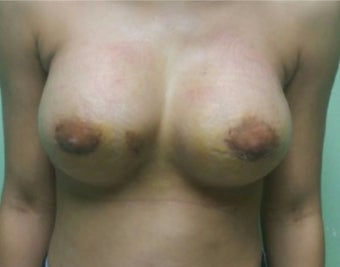 25-34 year old woman treated with Breast Augmentation after 3492288