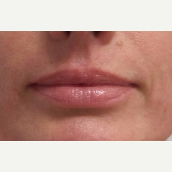35-44 year old woman treated with Restylane Silk for  Lip Augmentation before 1883923