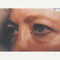 45-54 year old woman treated with Eye Bags Treatment before 3807298