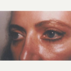 45-54 year old woman treated with Eye Bags Treatment after 3807298