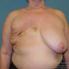 55-64 year old woman treated with Breast Reconstruction before 1711432