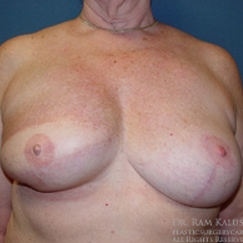 55-64 year old woman treated with Breast Reconstruction after 1711432