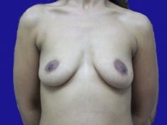 35 Year Old Female Had Breast Augmentation before 973699