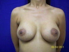 35 Year Old Female Had Breast Augmentation after 973699