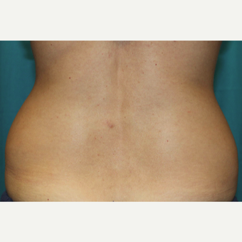 25-34 year old woman treated with CoolSculpting before 3588142