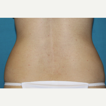 25-34 year old woman treated with CoolSculpting after 3588142