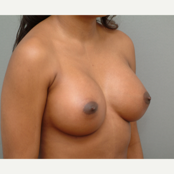 25-34 year old woman treated with Breast Implants after 3742029