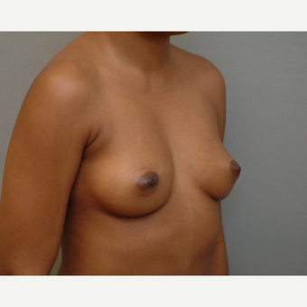 25-34 year old woman treated with Breast Implants before 3742029