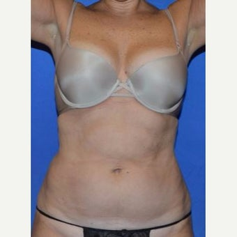 45-54 year old woman treated with SmartLipo (Laser Assisted Liposuction)