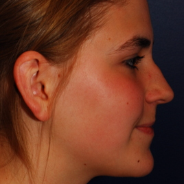 18-24 year old woman treated with Rhinoplasty before 3624286