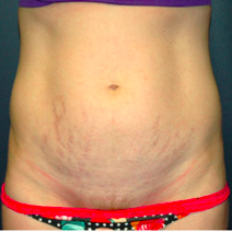 35 year old woman treated with Tummy Tuck before 3578515