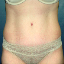 35 year old woman treated with Tummy Tuck after 3578515