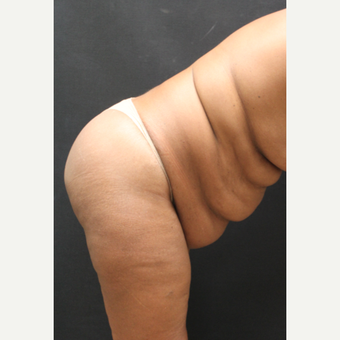 55-64 year old woman treated with Tummy Tuck and liposuction to abdomen before 3741366