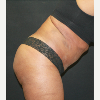55-64 year old woman treated with Tummy Tuck and liposuction to abdomen after 3741366