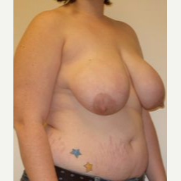 18-24 year old woman treated with Breast Reduction before 3280718