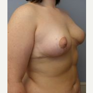18-24 year old woman treated with Breast Reduction after 3280718