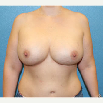 35-44 year old woman treated with Breast Implant Revision after 3401844
