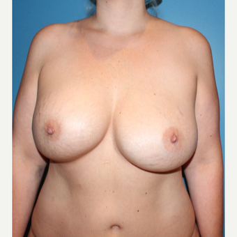 35-44 year old woman treated with Breast Implant Revision before 3401844