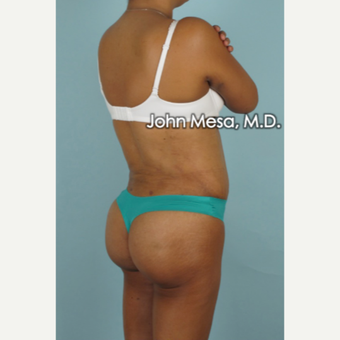 45-54 year old woman treated with Brazilian Butt Lift after 3777636
