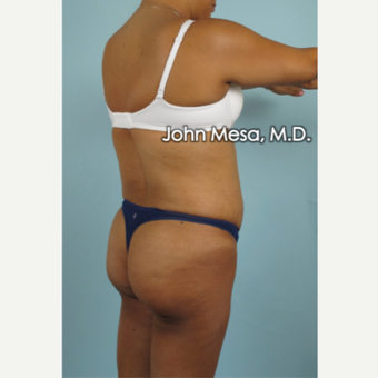 45-54 year old woman treated with Brazilian Butt Lift before 3777636