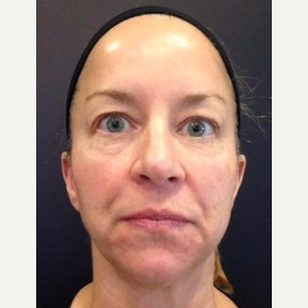 45-54 year old woman treated with Juvederm before 3060077