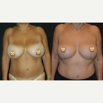 55-64 year old woman treated with Breast Lift before 3703960