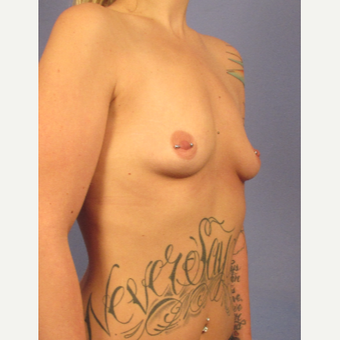 25-34 year old woman treated with Breast Augmentation before 3692102
