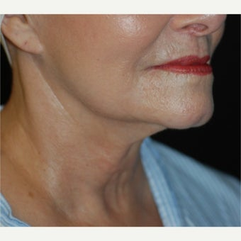 55-64 year old woman treated with Lower Face Lift before 1721385