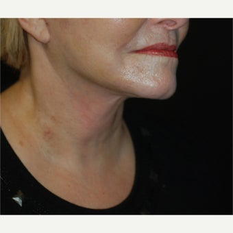55-64 year old woman treated with Lower Face Lift after 1721385