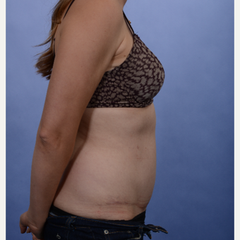 Tummy Tuck after 3052355