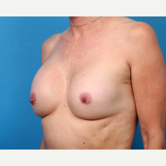 25-34 year old woman treated with Breast Implant Revision before 3371246