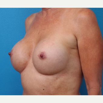 25-34 year old woman treated with Breast Implant Revision after 3371246