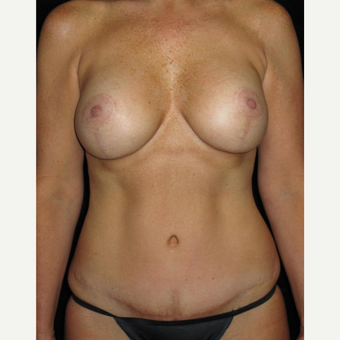 45-54 year old woman treated with Mommy Makeover after 3252353
