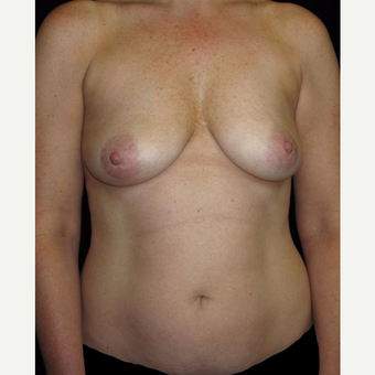 45-54 year old woman treated with Mommy Makeover before 3252353