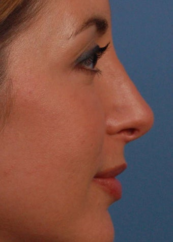 25-34 year old woman treated with Rhinoplasty after 2106960