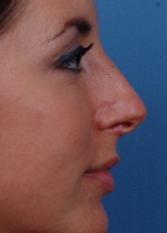 25-34 year old woman treated with Rhinoplasty before 2106960