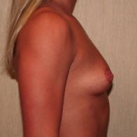 25-34 year old woman treated with Breast Augmentation before 3299848