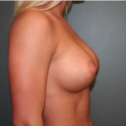 25-34 year old woman treated with Breast Augmentation after 3299848