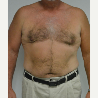 55-64 year old man treated with Male Breast Reduction after 3054052