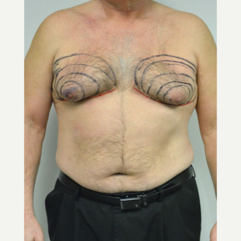 55-64 year old man treated with Male Breast Reduction before 3054052