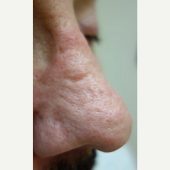 55-64 year old man treated with Dermabrasion before 3139460